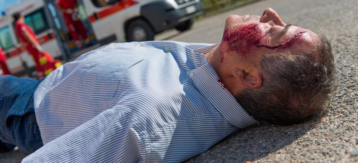 This image shows an unconscious man with a severe head injury.